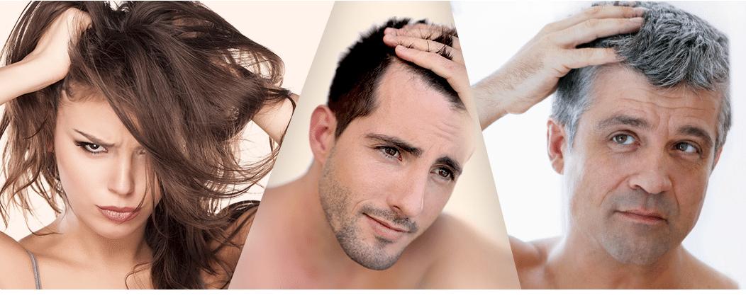 Perte des cheveux : quel est le rôle de l'alimentation ?